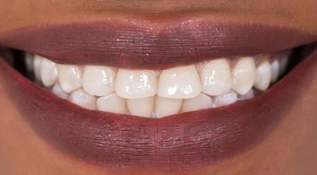 Diş Dolgusu Tarihe Karışıyor