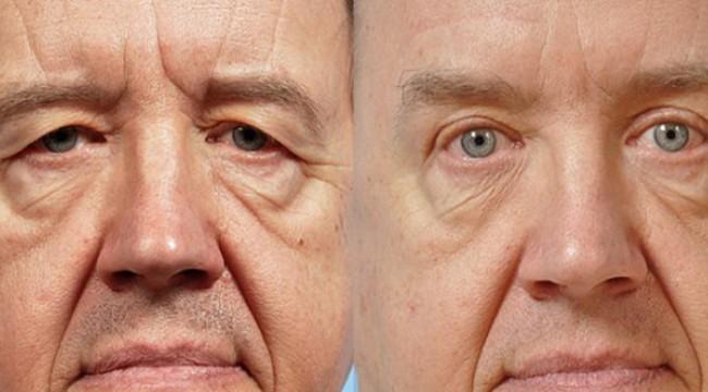 Göz kapak ameliyatı olurken dikkat