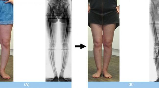 Kol ve bacak kemiklerindeki kısalık ya da eğriliklere çözüm