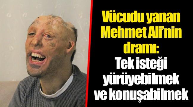 Vücudu yanan Mehmet Ali'nin dramı: Tek isteği yürüyebilmek ve konuşabilmek