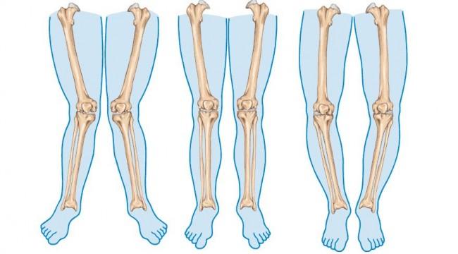 Çarpık bacak problemi artık çözümsüz değil