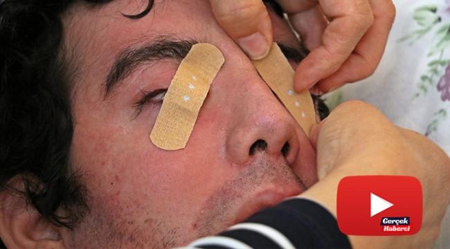 6 yıldır gözlerini kırpamıyor, kan çanağına dönen gözleri bantla kapatılıyor