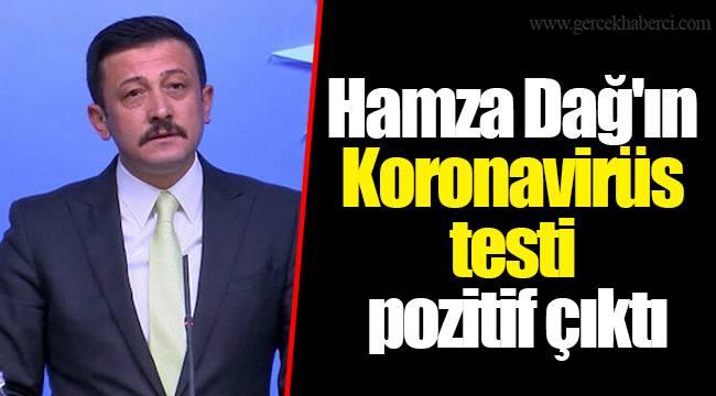 Hamza Dağ'ın Koronavirüs testi pozitif çıktı